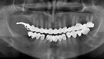 lastra arcata dentale