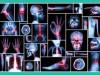 ortopedia-cds