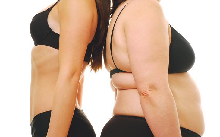 obesità diagnosi cura