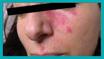 trattamento angiomi dermatologia