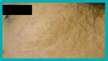 cicatrici da acne dopo il trattamento