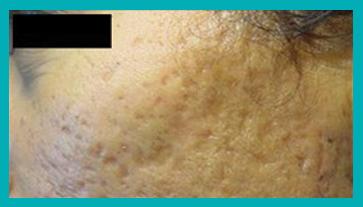 cicatrici da acne prima del trattamento