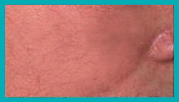 couperose rosa dopo il trattamento