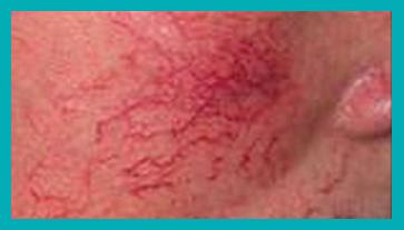 couperose rosa prima del trattamento