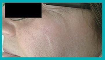 macchie della pelle dopo il trattamento