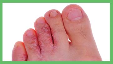 ipercheratosi del piede