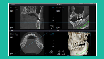 dentascan cone beam al centro diagnostico sabatino