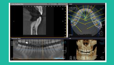 tomografo cone beam al centro diagnostico sabatino