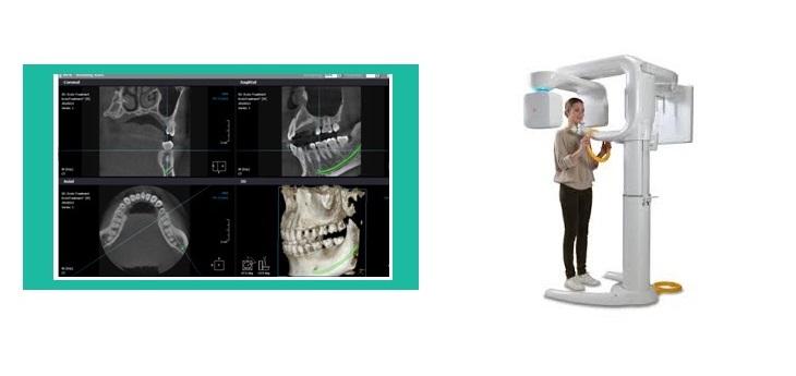 Esami CBCT Tomografo Cone Beam 3D, videocorso per software referti