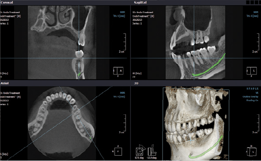 Dentascan Cone Beam 3D